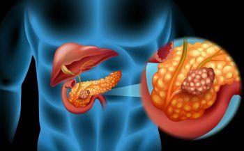 Mắc bệnh ung thư tuyến tụy sống được bao lâu?