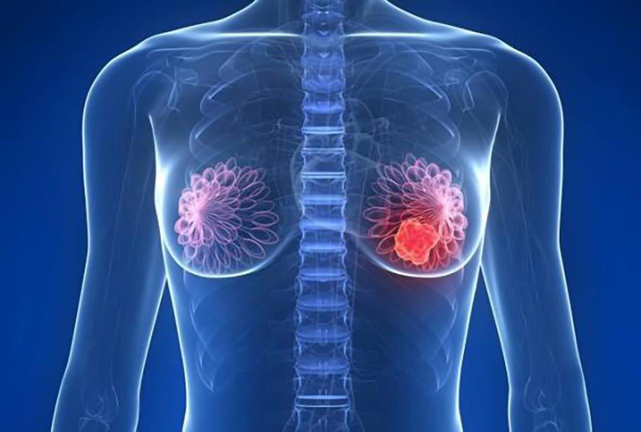 Ung thư vú là bệnh lý ác tính bắt nguồn tại vú