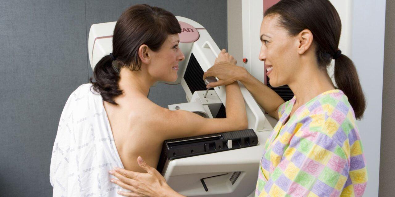 X quang vú là phương pháp chuẩn trong chẩn đoán ung thư vú
