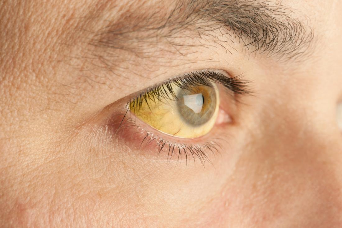 Vàng da là một trong những dấu hiệu ung thư tuyến tụy cho sớm nhất