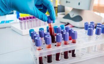 Những điều cần biết về bệnh ung thư máu