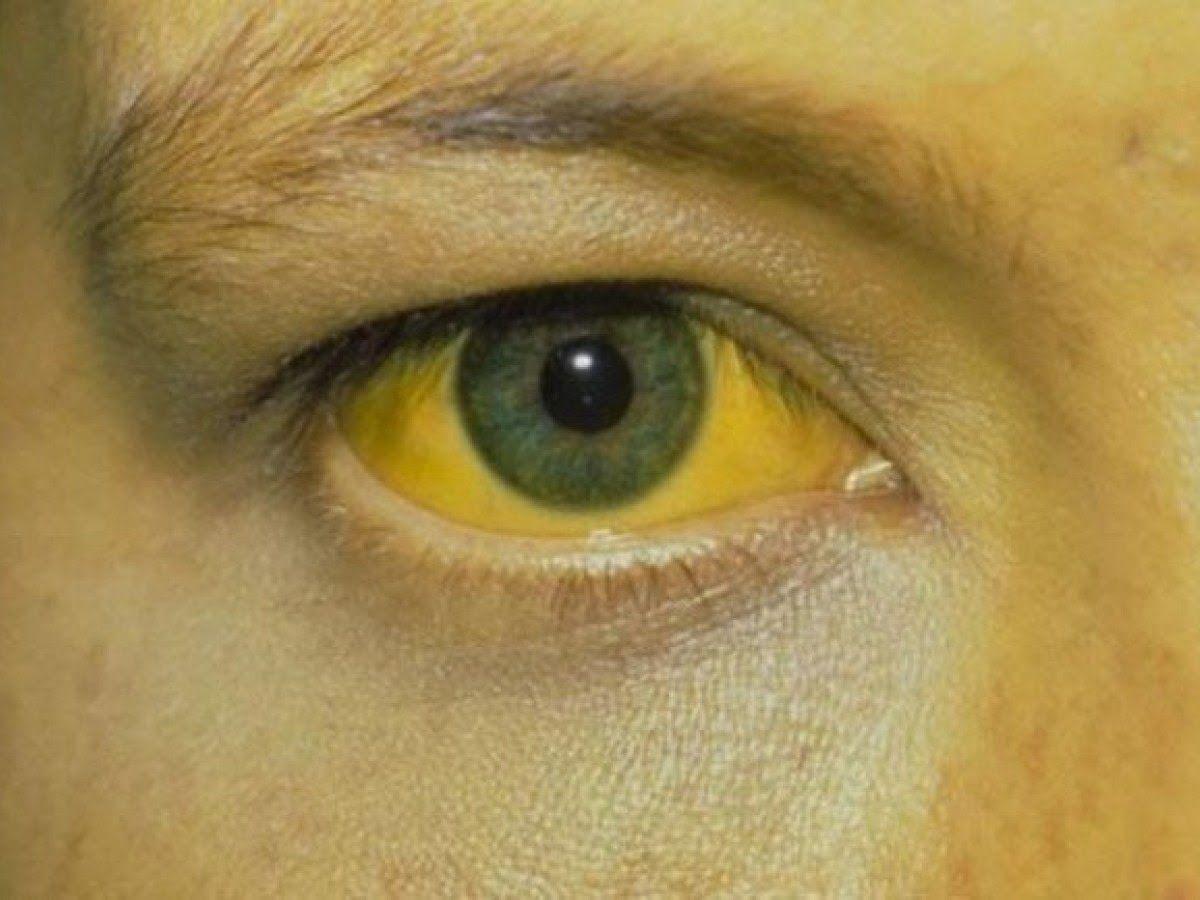 Vì đã di căn vào gan nên người bệnh có thể bị vàng da, vàng mắt.