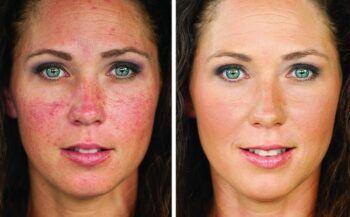 Bệnh ung thư da mặt và những điều cần biết