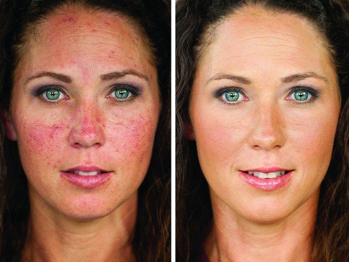 Bệnh ung thư da mặt di căn rất nhanh