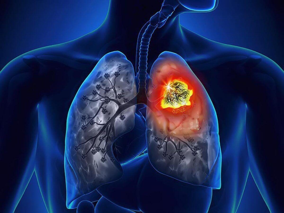 Tỉ lệ mắc ung thư phổi là rất cao