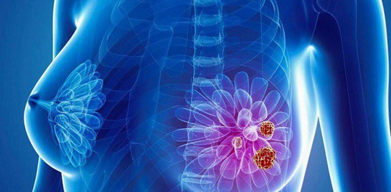 Bệnh ung thư vú giai đoạn 4 là giai đoạn ung thư đã di căn sang các cơ quan khác trong cơ thể
