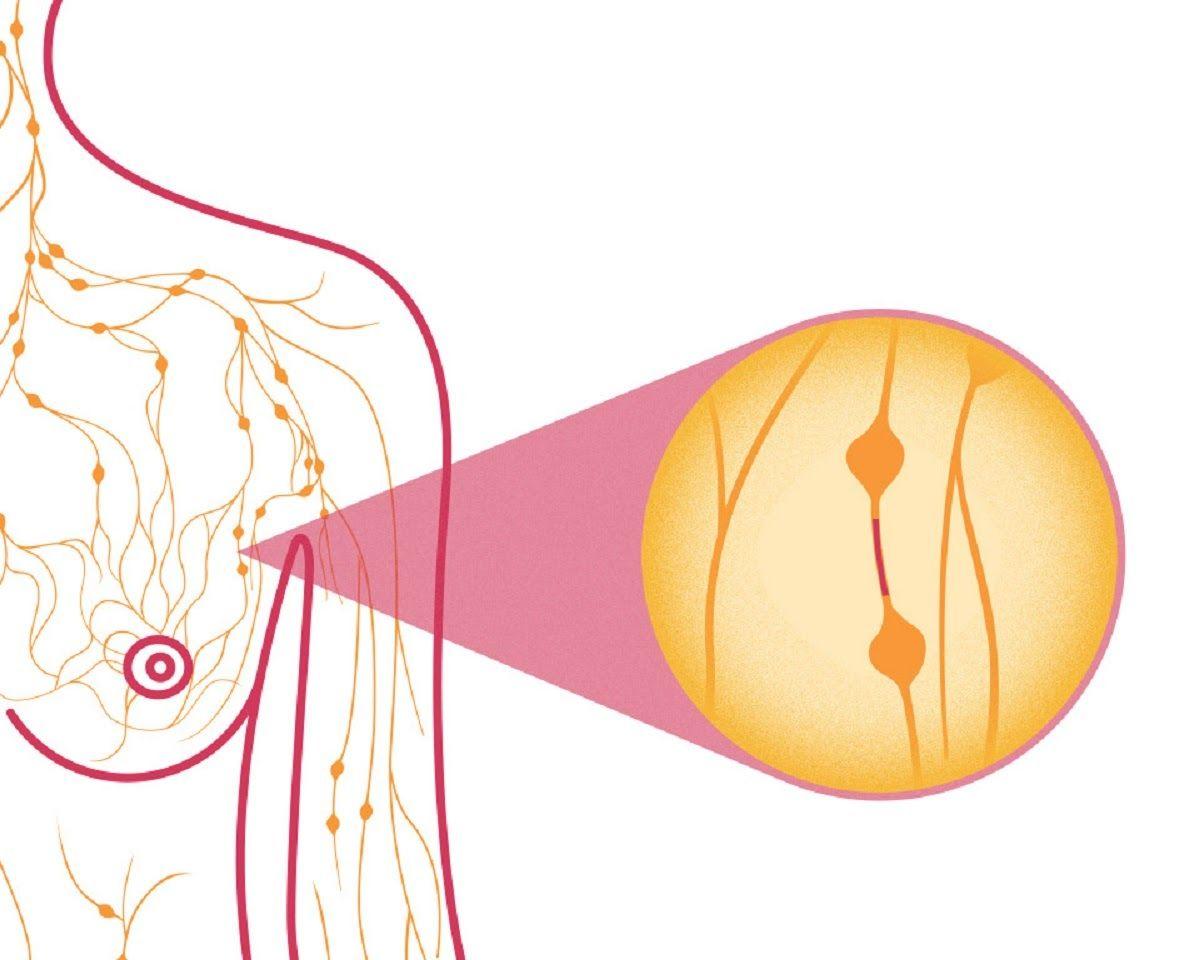 Bệnh ung thư vú dạng viêm cần được điều trị kịp thời và tích cực
