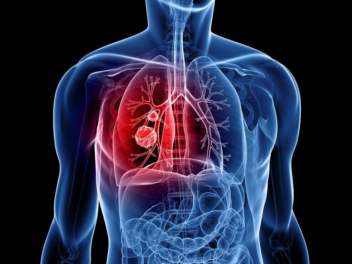 Giai đoạn bệnh là một trong những yếu tố quyết định đến lựa chọn cách chữa ung thư phổi