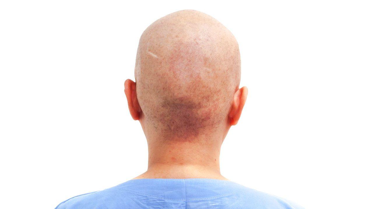 Khi chữa ung thư phổi có thể gặp một số tác dụng phụ từ xạ trị