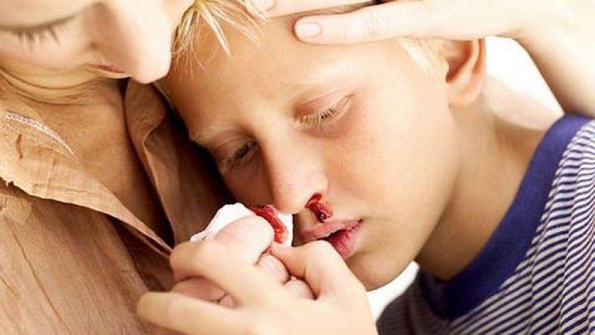 Chảy máu cam là một trong những dấu hiệu của ung thư máu