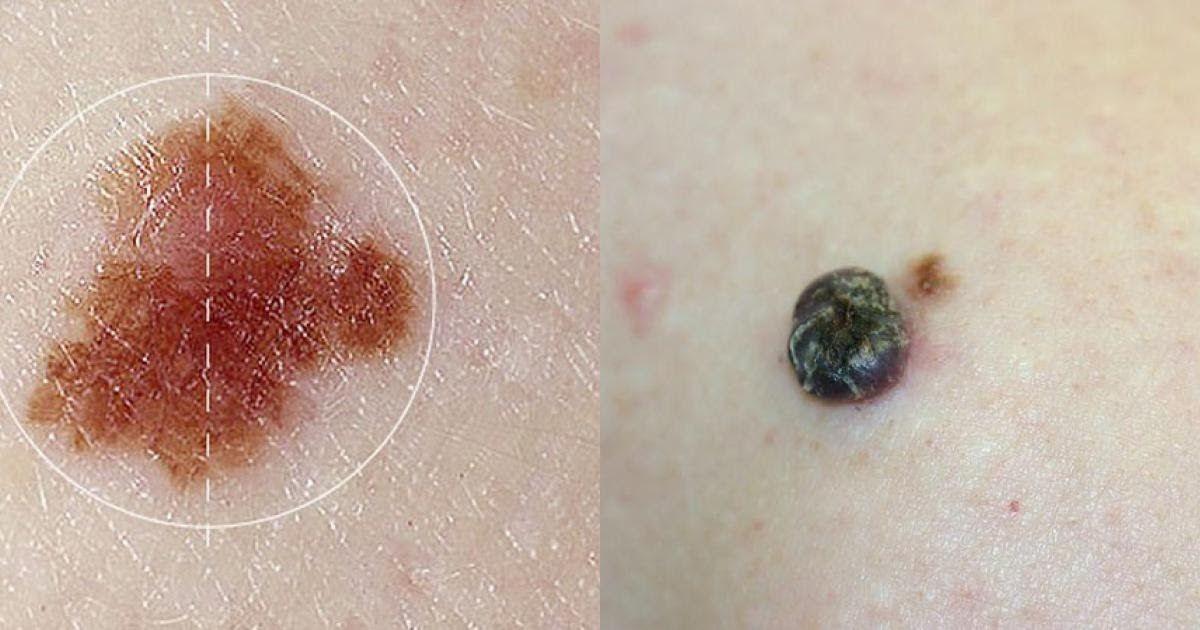 Nốt ruồi không cân xứng, bờ viền không đều có thể là dấu hiệu ung thư da