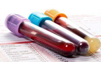 Các dấu hiệu ung thư máu ở trẻ em phụ huynh không nên chủ quan
