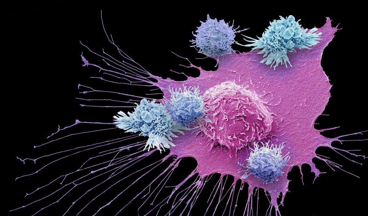 Liệu pháp miễn dịch được thiết kế nhằm kích thích phòng vệ tự nhiên của cơ thể để chống lại ung thư