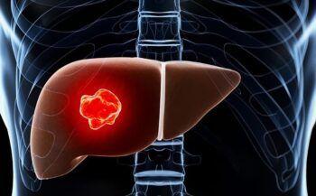 Ung thư gan giai đoạn đầu biểu hiện và cách điều trị bệnh hiệu quả