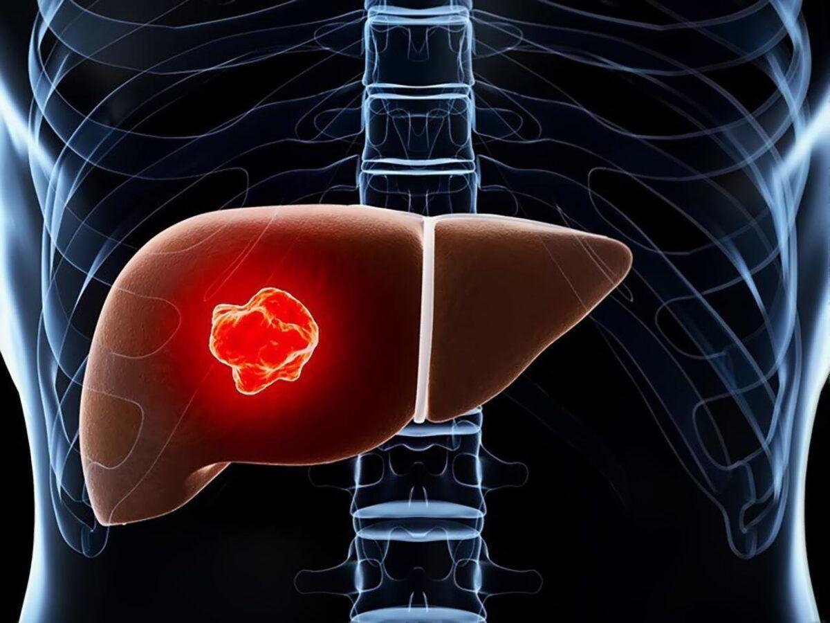 Ung thư gan qua các giai đoạn