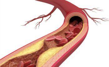 Mách bạn cách giảm mỡ máu hiệu quả tại nhà