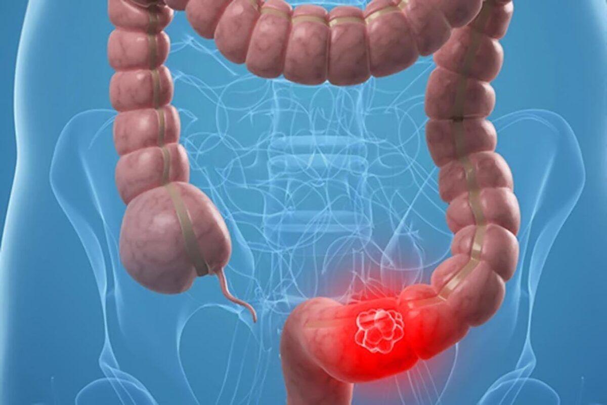 Táo bón, đau bụng giữ dội là dấu hiệu thường gặp của ung thư đại tràng