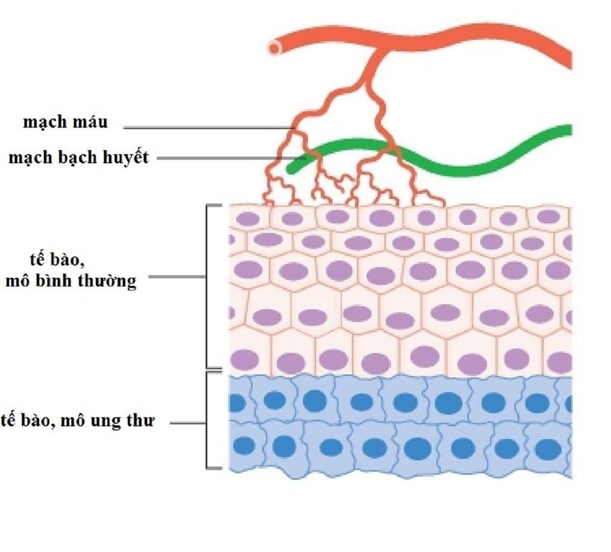 Sự kích thích tăng sinh mạch máu cho tế bào ung thư