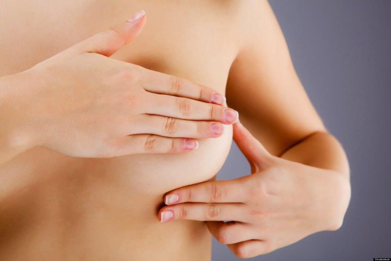 triệu chứng của bệnh ung thư vú