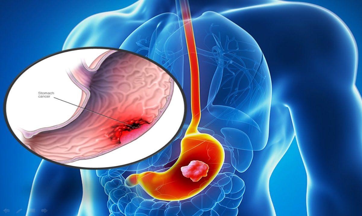 Ung thư dạ dày là nguyên nhân gây tử vong phổ biến thứ 2 ở cả nam và nữ