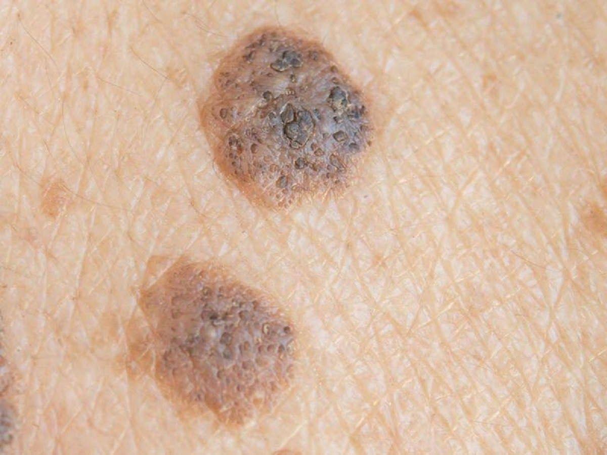 Ung thư da là gì? Ung thư da là loại ung thư xuất phát từ các tế bào ở da
