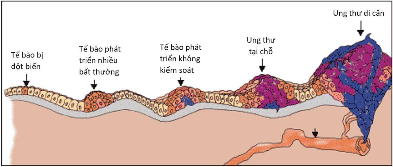 Một số tế bào có thể tách ra và đi vào các mạch bạch huyết nhỏ hoặc các mạch máu, hay còn được gọi là mao mạch, trong khu vực.