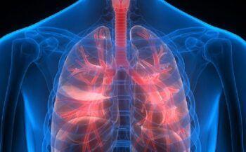 Ung thư phế quản và những điều cần biết