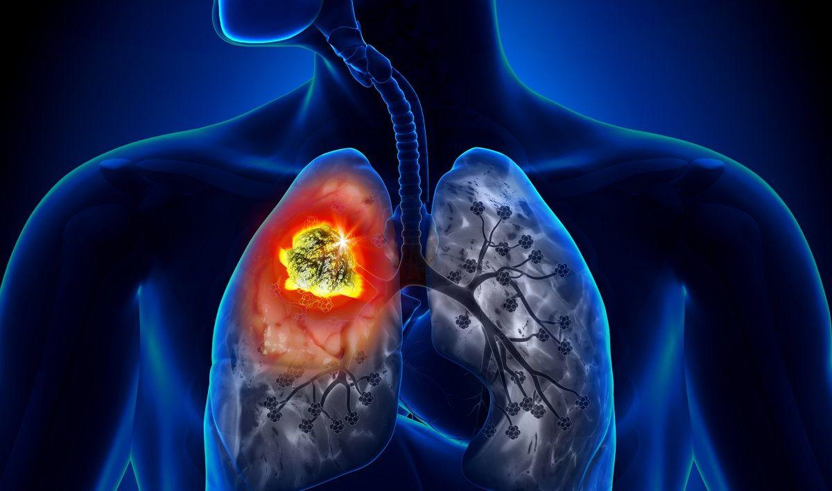 Nhiễm khí radon là một nguyên nhân gây nên bệnh ung thư phổi