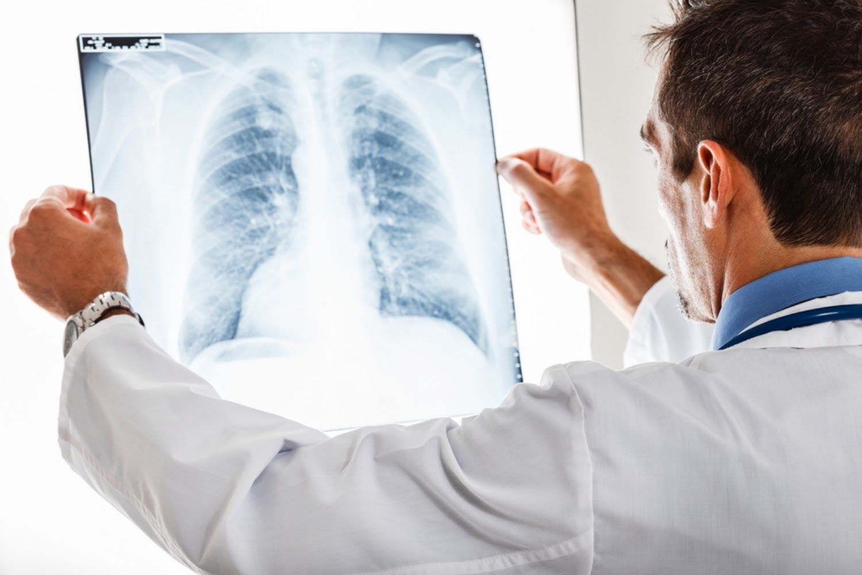 Ung thư phổi có chữa được không phụ thuộc vào từng giai đoạn