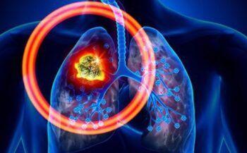 Bệnh ung thư phổi có lây không?