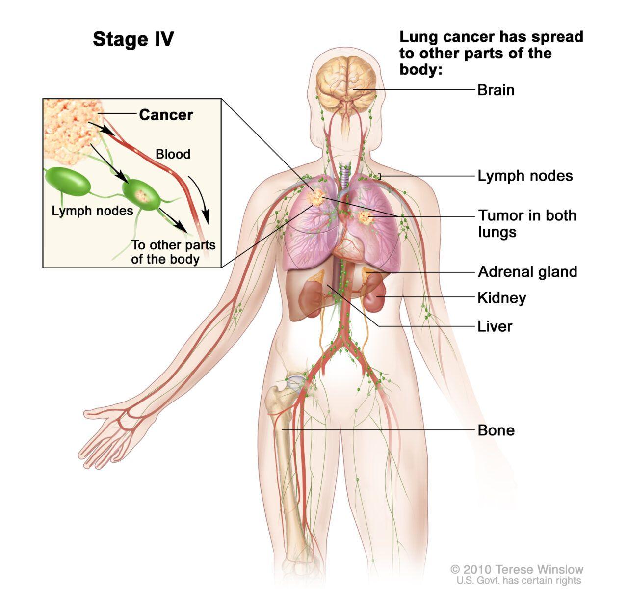 Ung thư phổi giai đoạn cuối đã di căn rộng sang hai bên phổi và các cơ quan ở xa như xương, não, tuyến thượng thận…