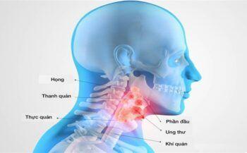 Ung thư vòm họng có chữa được không? Cách điều trị như thế nào?