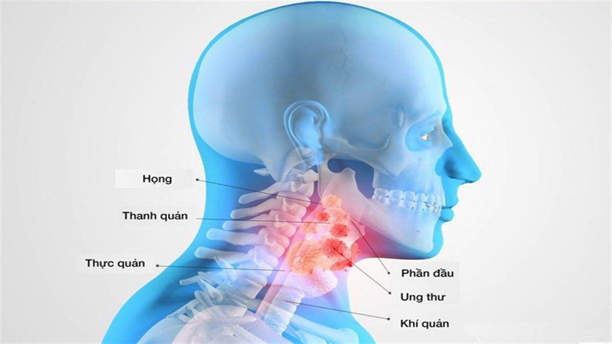 ung thư vòm họng có chữa được không