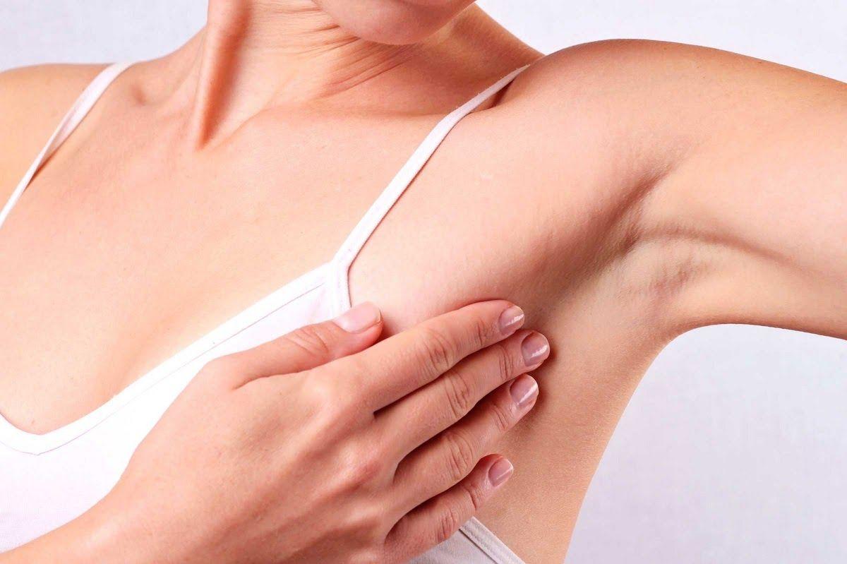 Xuất hiện hạch ở nách là một trong những triệu chứng cảnh báo ung thư vú