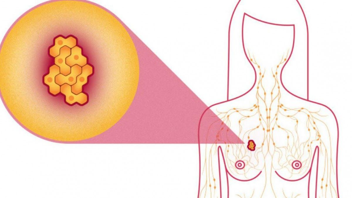 Ung thư vú giai đoạn 1 kích thước khối u nhỏ, tiên lượng điều trị tốt