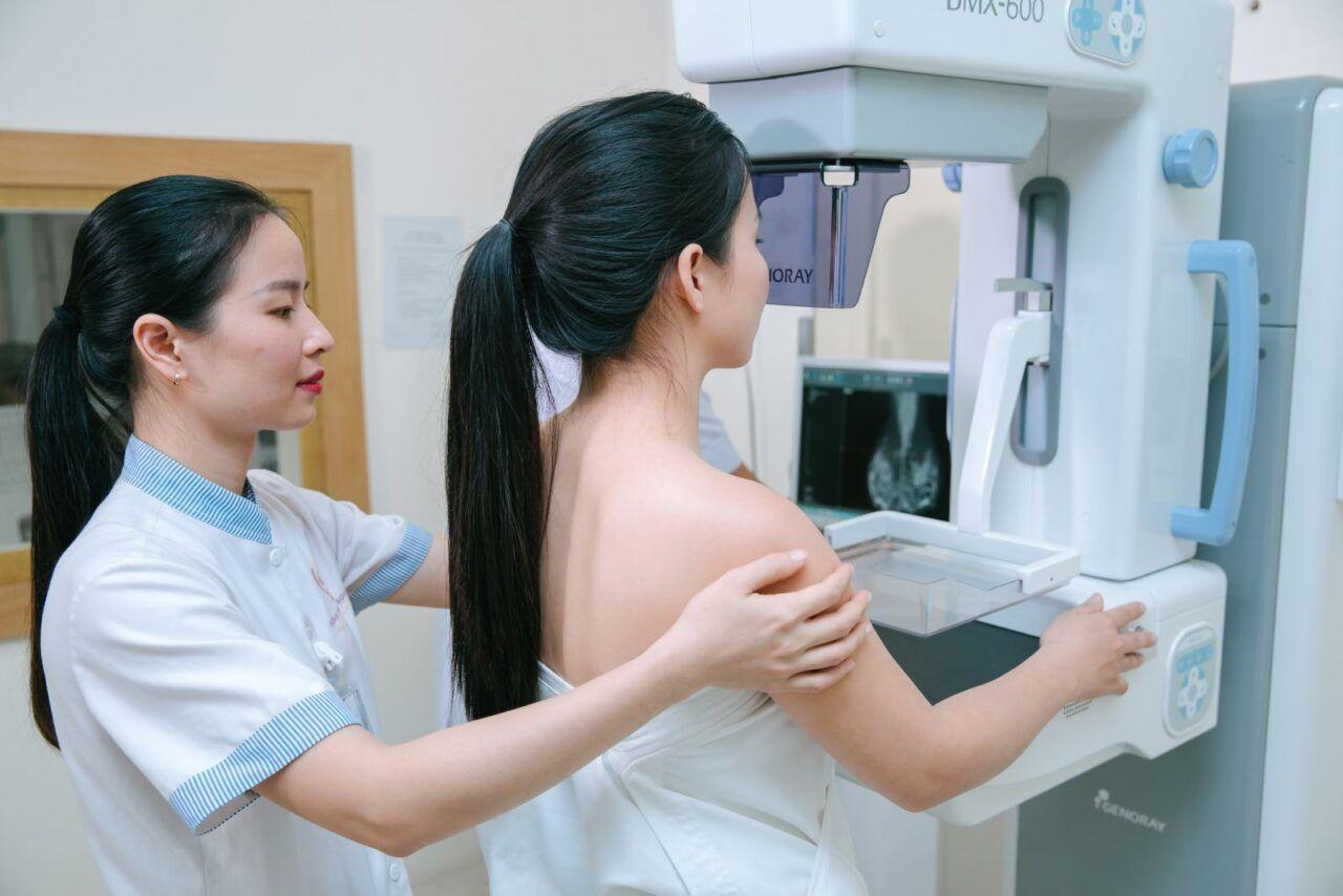 Rọi khám vú để chẩn đoán ung thư vú