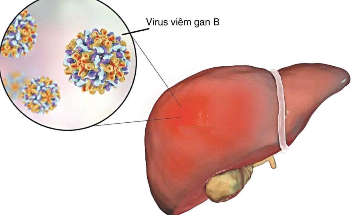 Virus viêm gan B gây nên bệnh ung thư gan