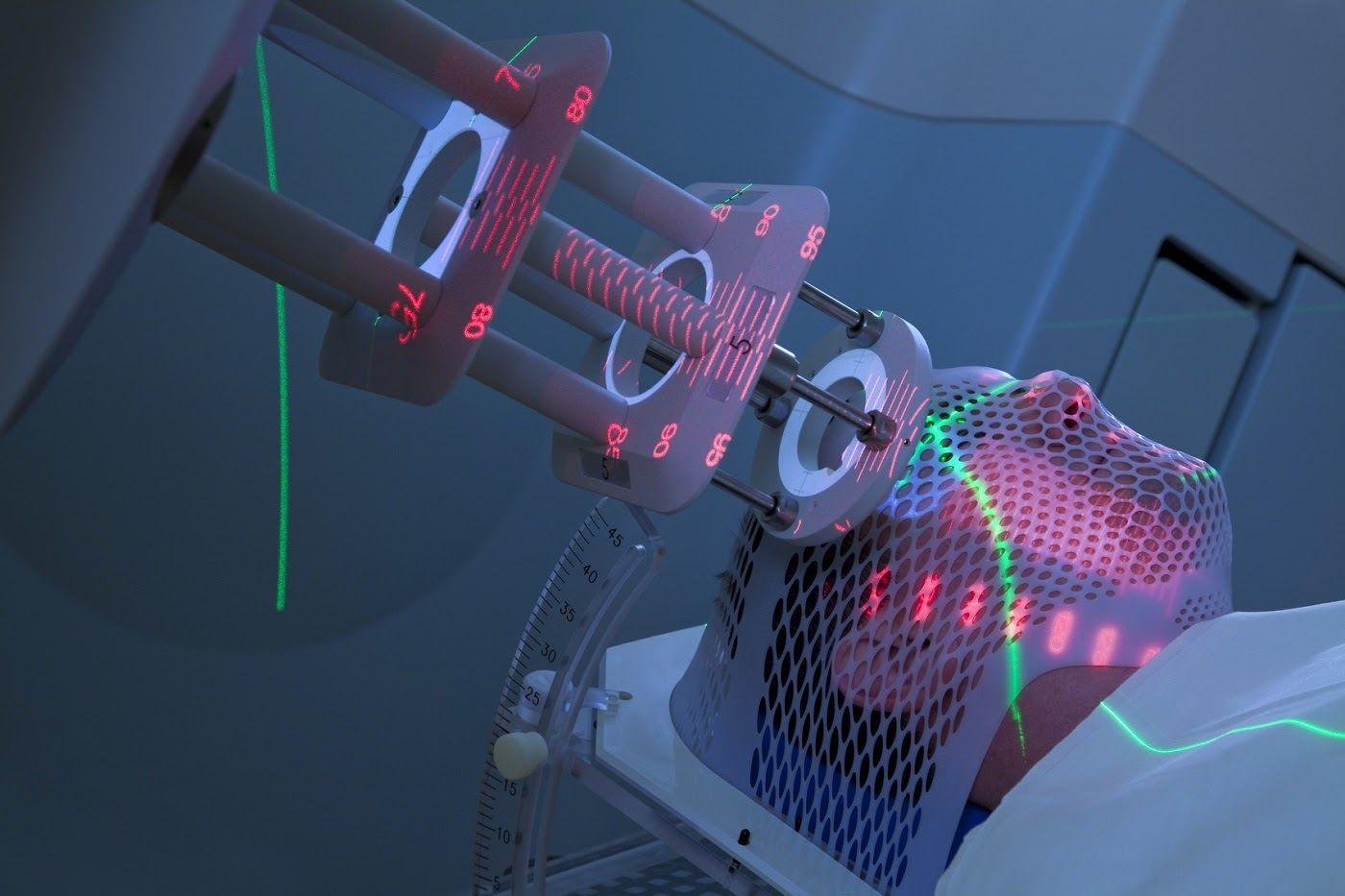 Xạ trị là dùng tia có năng lượng cao (tia X) để diệt tế bào ung thư hoặc thu nhỏ tế bào.