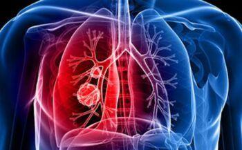 Bệnh ung thư phổi sống được bao lâu? Cách kéo dài sự sống cho bệnh nhân