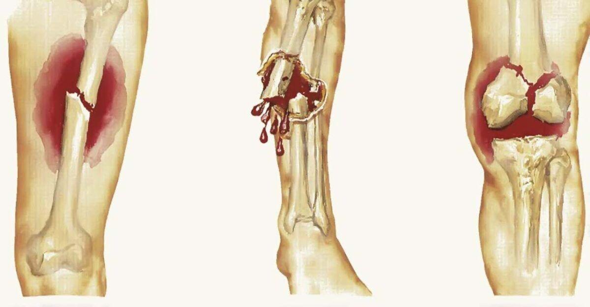 Biểu hiện ung thư xương là gây ra đau nhức xương, xương dễ gãy