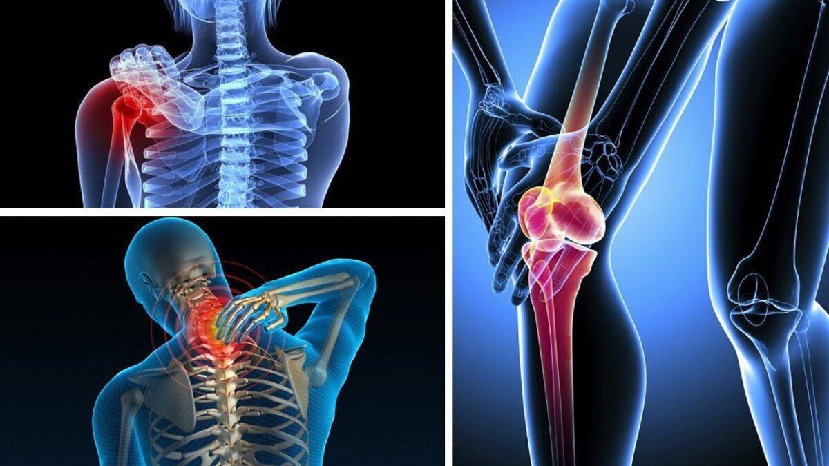 Ung thư xương là bệnh ung thư hiếm gặp nhưng rất nguy hiểm đến tính mạng người bệnh