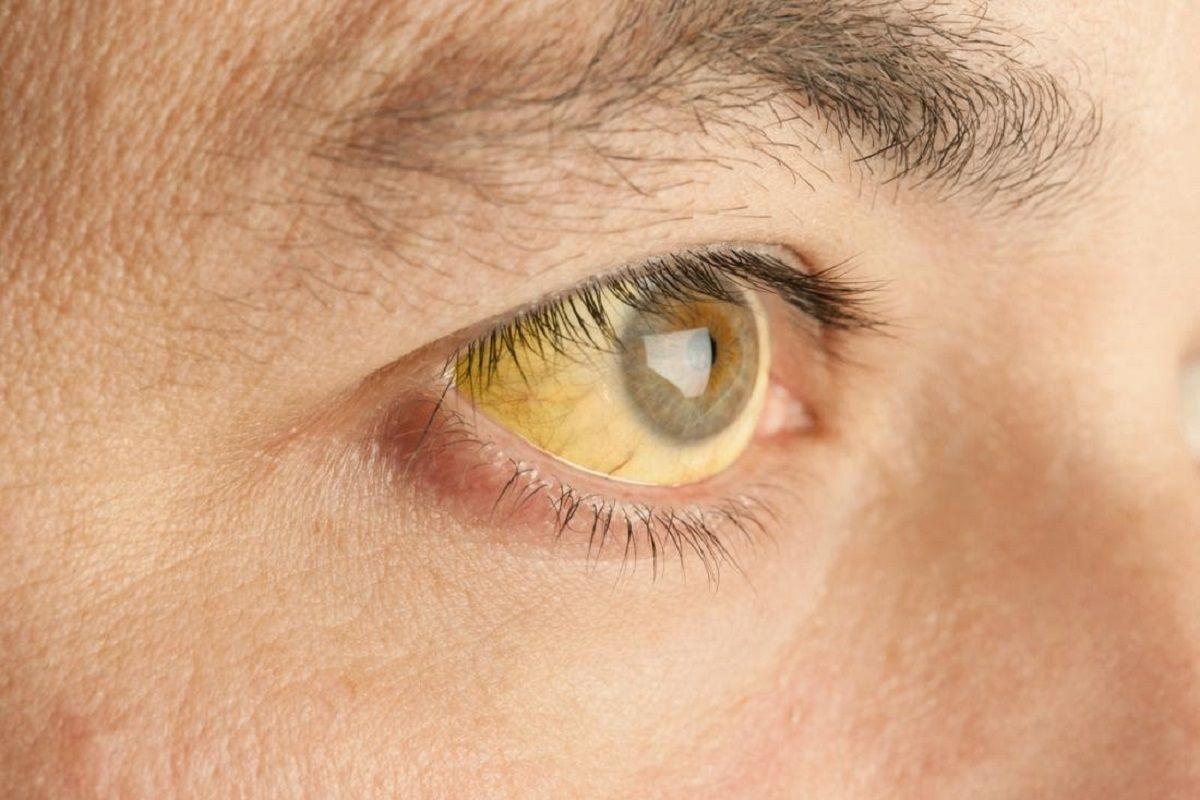 Vàng mắt, vàng da là dấu hiệu của ung thư phổi