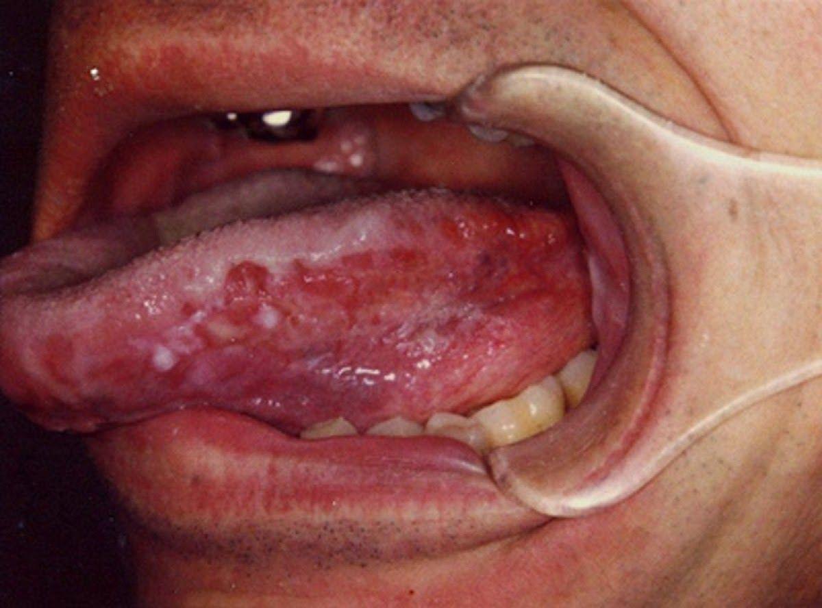 Lưỡi bị lở loét là dấu hiệu ung thư lưỡi điển hình