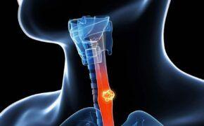 Dấu hiệu ung thư thực quản và tác dụng phụ do hóa trị ung thư thực quản gây ra