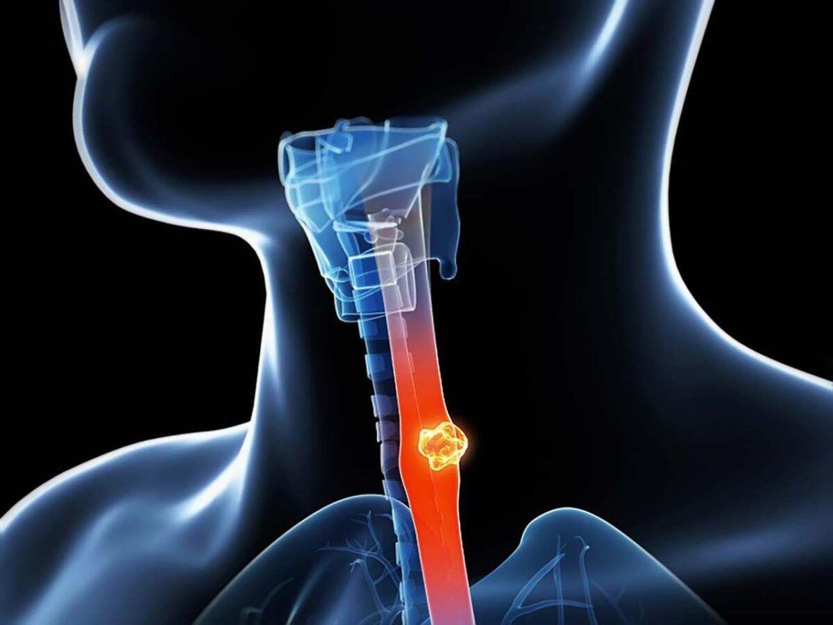 Ung thư thực quản là khối u ác tính xuất phát từ các tế bào biểu mô của thực quản