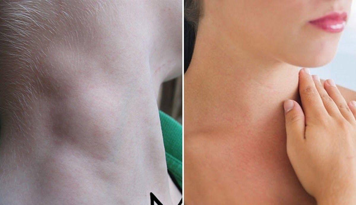 Nổi hạch ở cổ là một trong những dấu hiệu ung thư vòm họng sớm