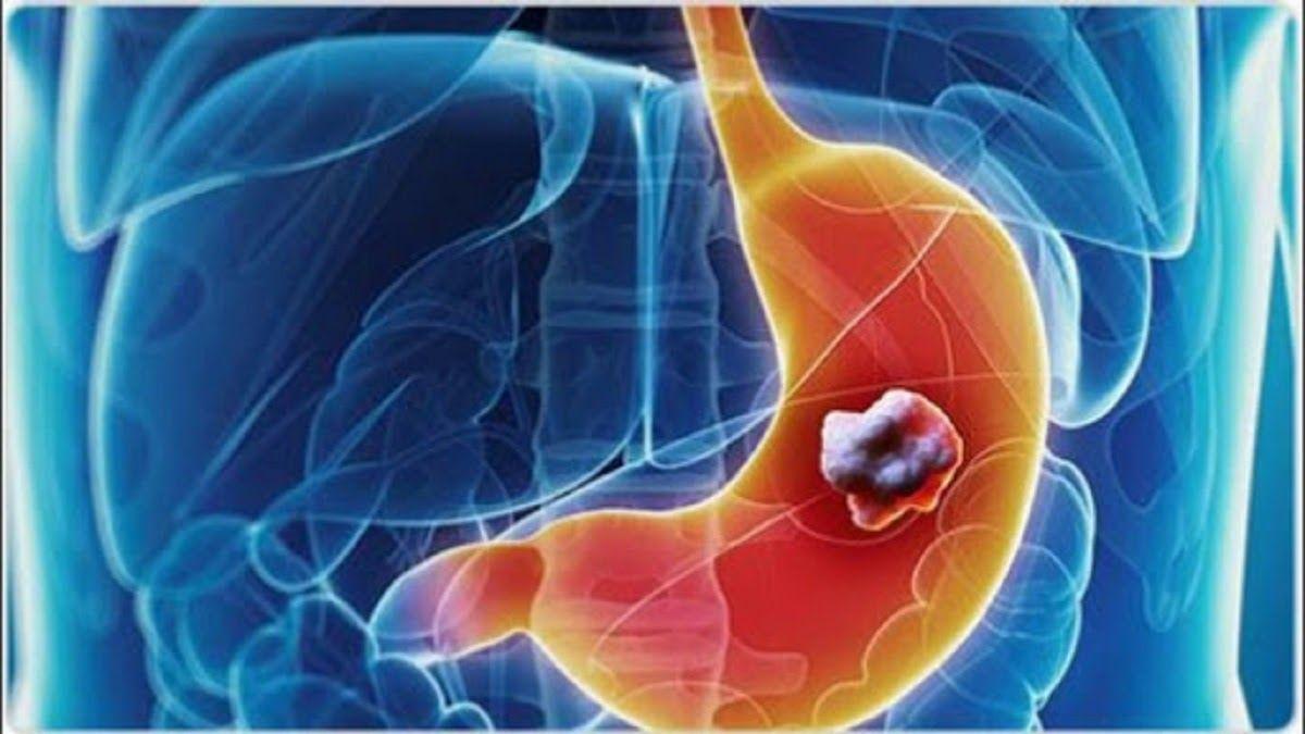Ung thư dạ dày là ung thư bắt đầu từ trong dạ dày