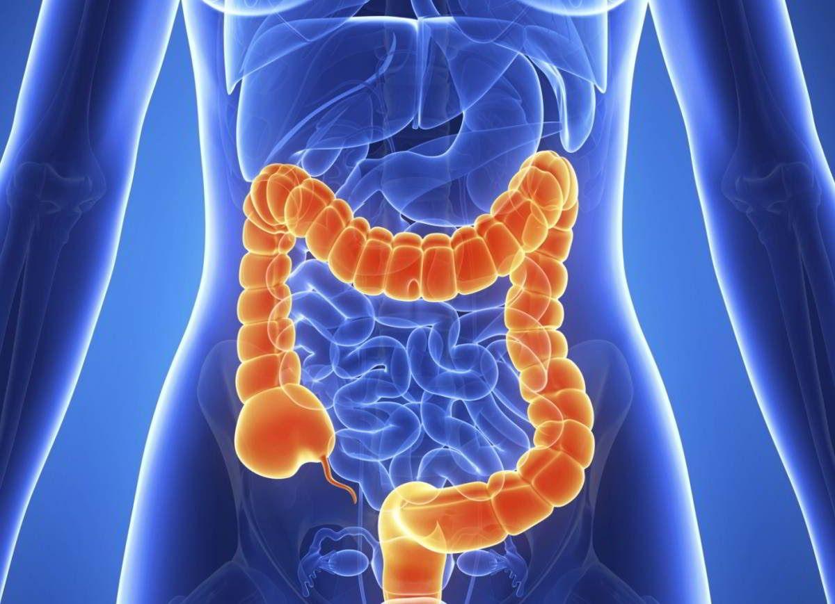 Khi bị ung thư đại tràng, người bệnh sẽ thấy thay đổi trong các nhu động ruột