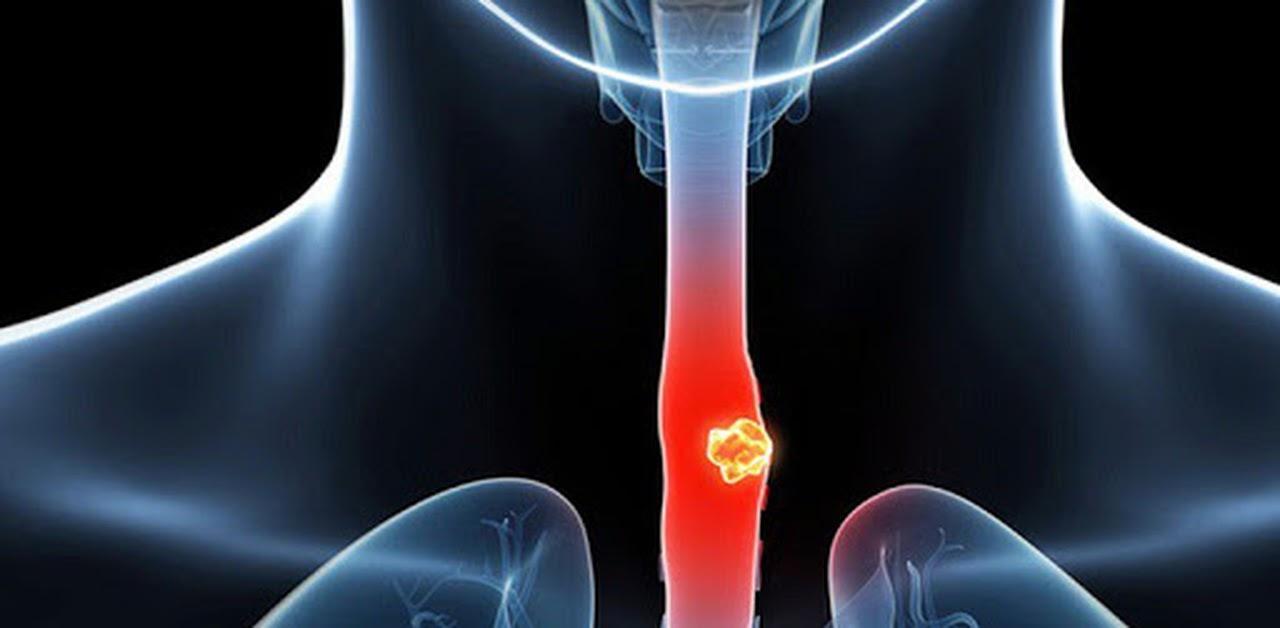Ung thư thực quản (Ảnh minh họa)