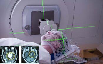 Triệu chứng ung thư não và các phương pháp xạ trị ung thư não